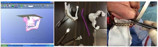 impression-3d-chirurgie-cranio-maxillo-facial
